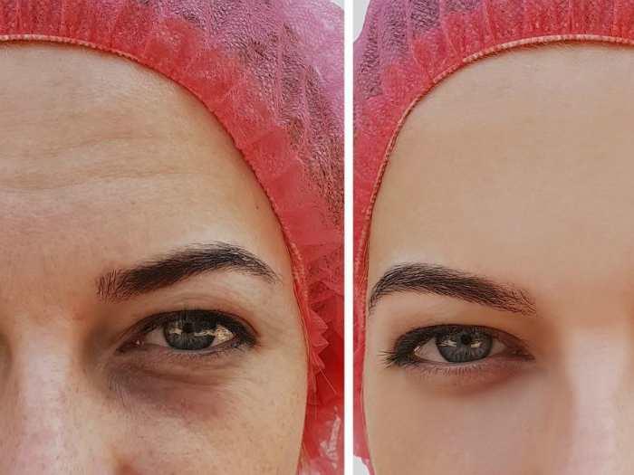 Отёки под глазами до и после процедур