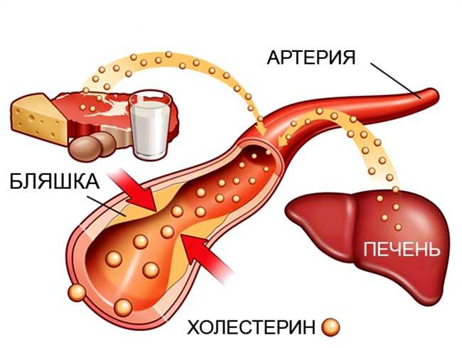 Уровень холестерина в крови человека