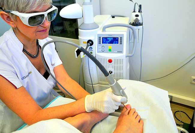 Лечение ногтей ног поражённых грибком