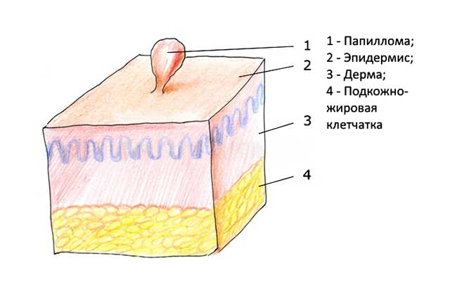 Что такое папиллома и как от неё избавится