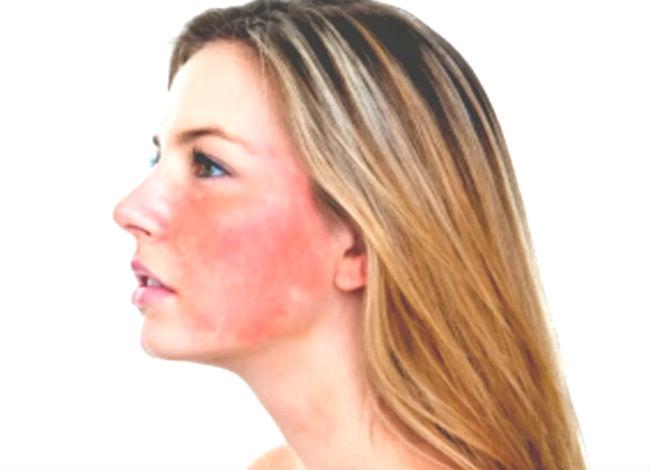 как убрать покраснение кожи лица