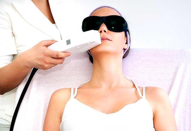 Фотоэпиляция - косметологическая процедура по удалению волос