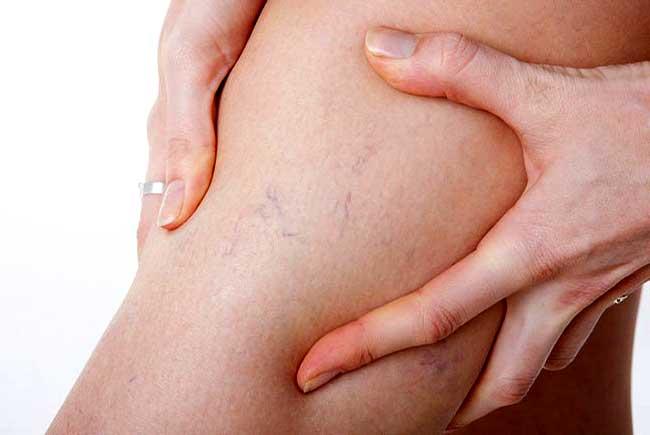 Болезнь вен варикоз на ногах