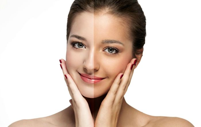 Отбеливание лица до и после