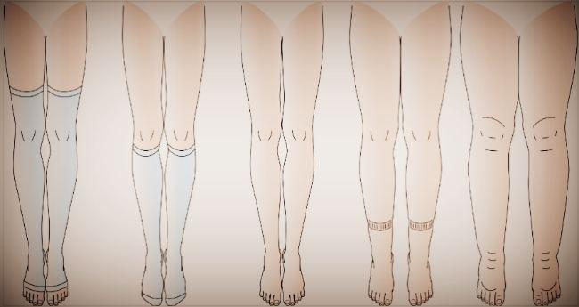 Симптомы отёка ног