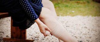 почему болят и отекают ноги у женщин
