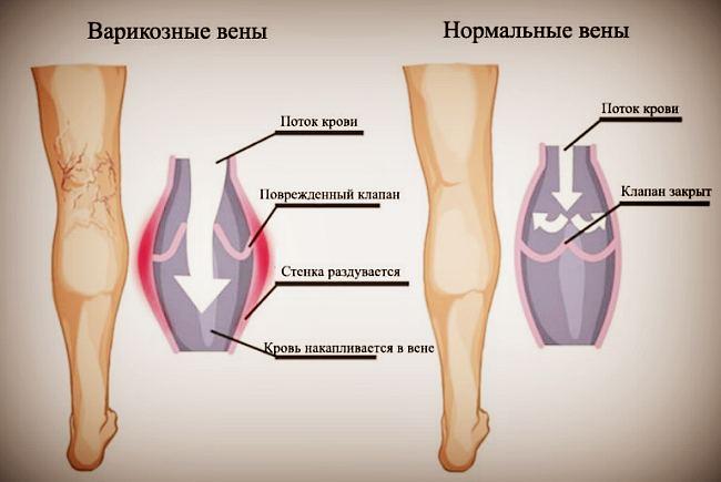 Сравнение вен при варикозе и здоровых ног