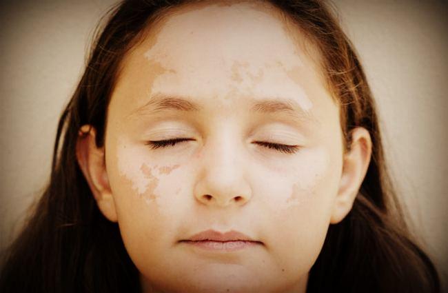 Появление белых пятен на лице у детей