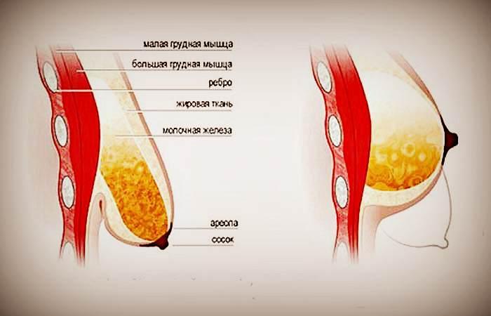 Причины обвисания груди после вскармливания