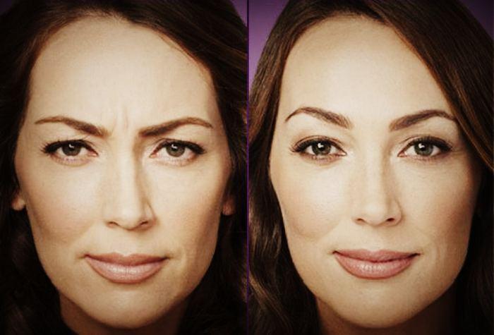 Миостимуляция лица результаты -до и после