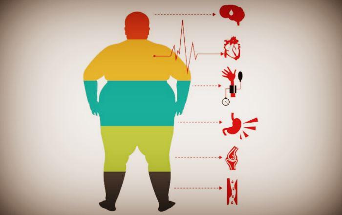 Заболевания которые провоцирует ожирение
