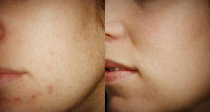 До и после применения геля Куриозин