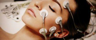 Что такое миостимуляция лица в косметологии