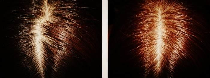 Осветление волос с помощью коры дуба мёда и корицы до и после