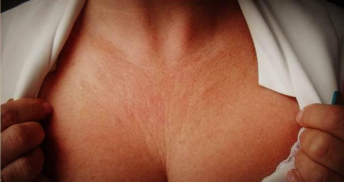 Морщинистая кожа в зоне декольте