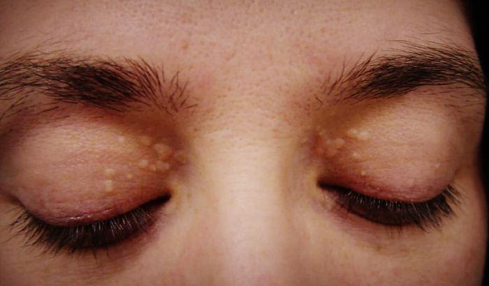 Ксантома кожи лица
