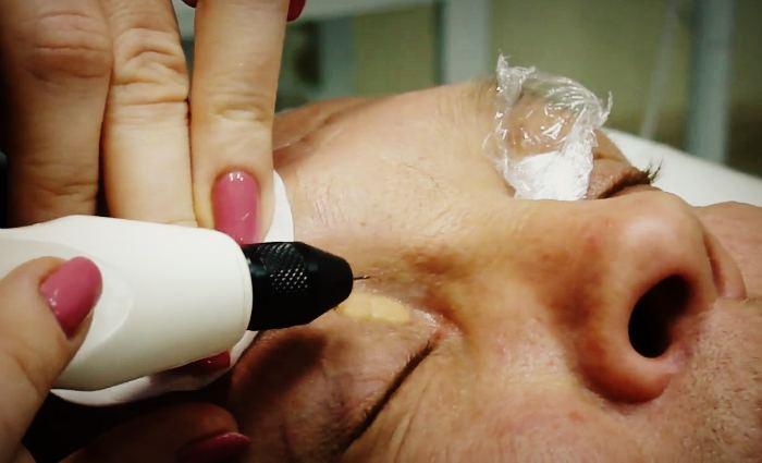 Ксантома кожи лечение