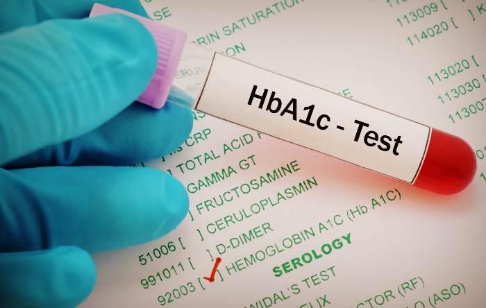 Тест на уровень гемоглобина в крови