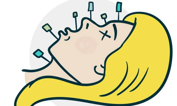 Иглотерапия лица