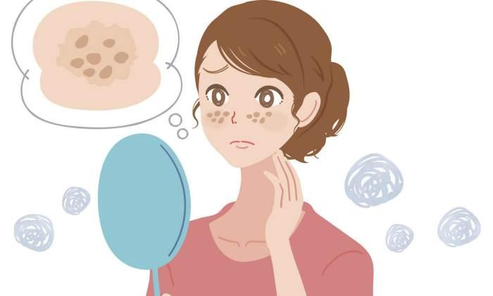 Симптомы появления пигментных пятен на лице