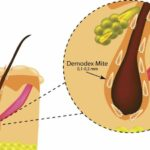 Демодекоз на лице у женщин: способы лечения
