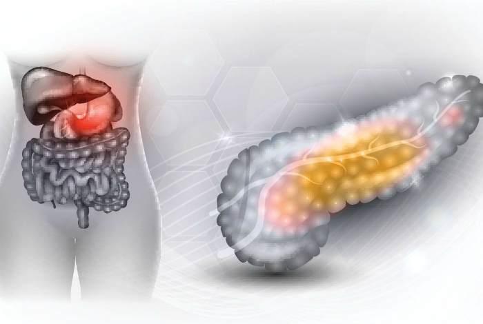 Панкреатит-воспаление поджелудочной железы