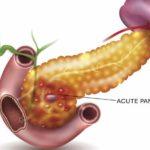 Диета при хроническом панкреатите поджелудочной железы