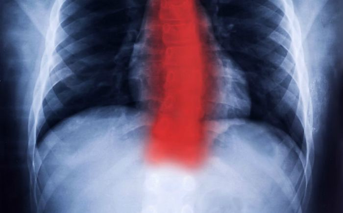Рентген шейного и грудного отдела позвоночника
