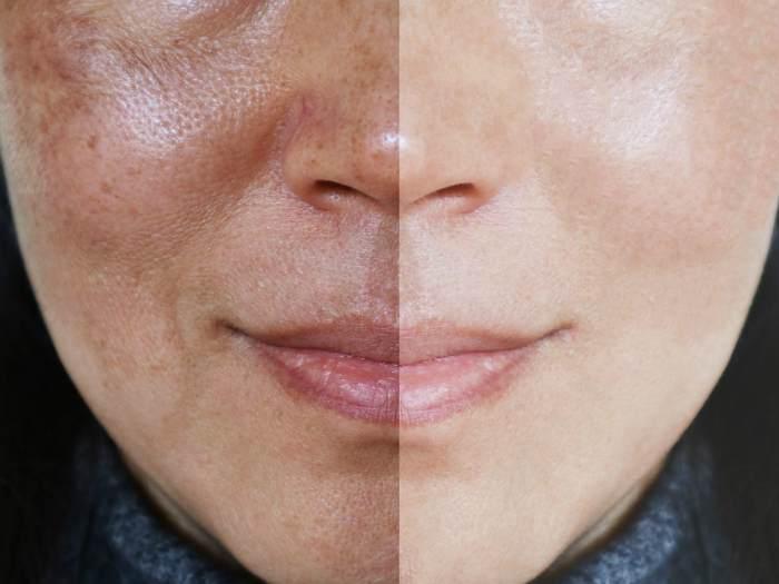 До и после процедуры уходу за лицом