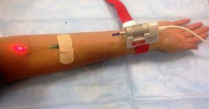 Процедура очищения крови лазером