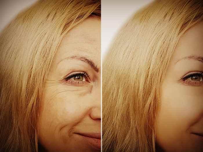 Лицо до и после процедур по удалению морщин