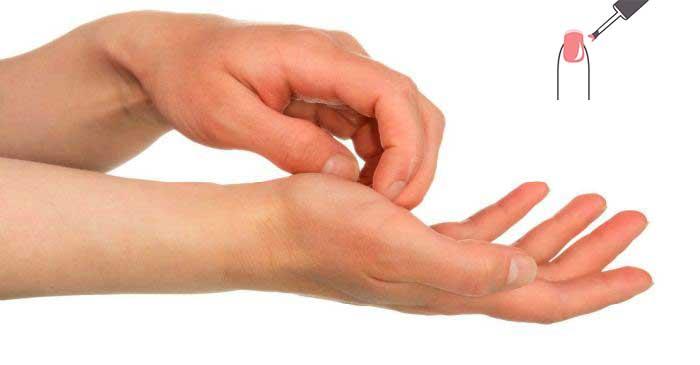 Аллергия на шеллак - что делать