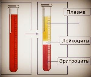 Методы определения СОЭ