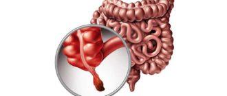 Как питаться после удаления аппенцита