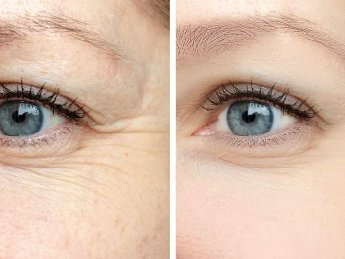 Карбокситерапия для лица фото до и после