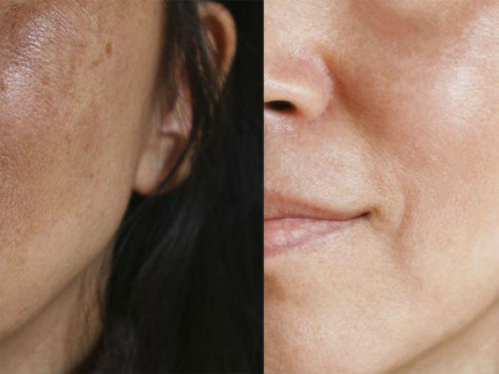 Карбокситерапия для лица безинъекционная фото до и после