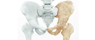 Внешние признаки остеопороза у женщин после 50 лет