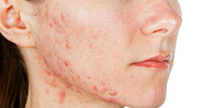 Шрамы о тпрыщей на лице и как от них избавится