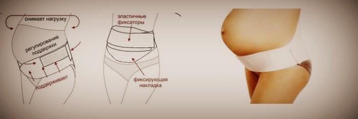 Как выбрать бандаж универсальный для беременных по размеру