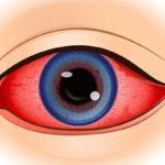 Норма глазного давления у женщин после 50 лет