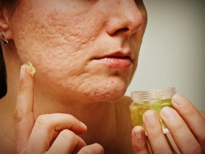Косметические средства от шрамов на лице