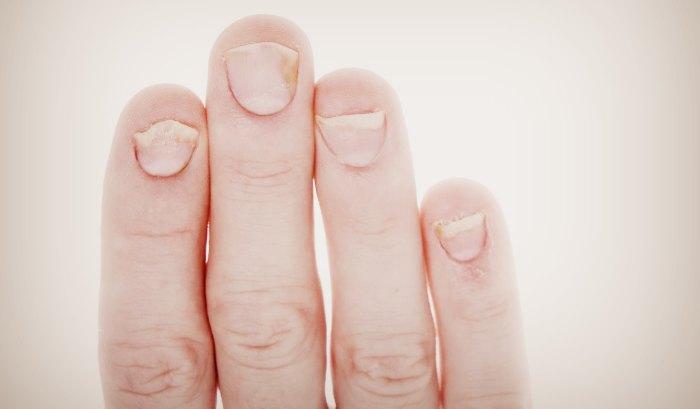 Причины вызывающие желтизну ногтей